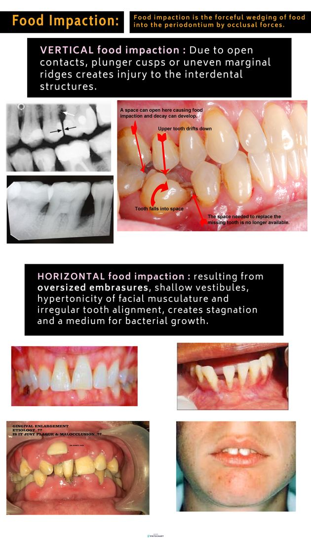 Warning Signs Symptoms And Causes Of Gum Periodontal