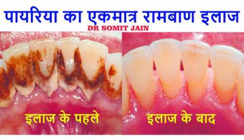 Prestige Dental Care | Dr.Somit Jain - Google Top 300 Reviews!